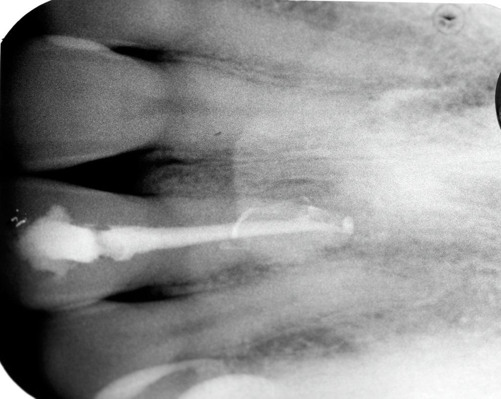 Diagnóstico de Conducto Lateral con Fístula en un 11 02