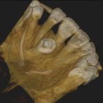 manuel ruiz radiologia 3d 20