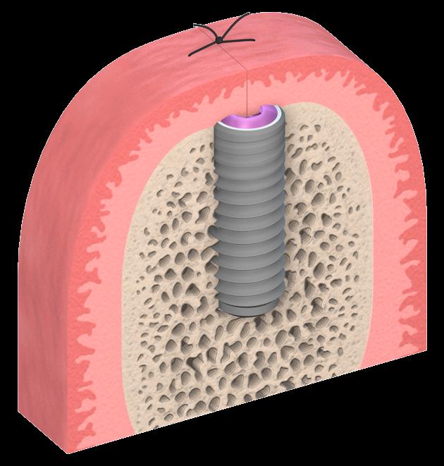 Implante colocado en el hueso