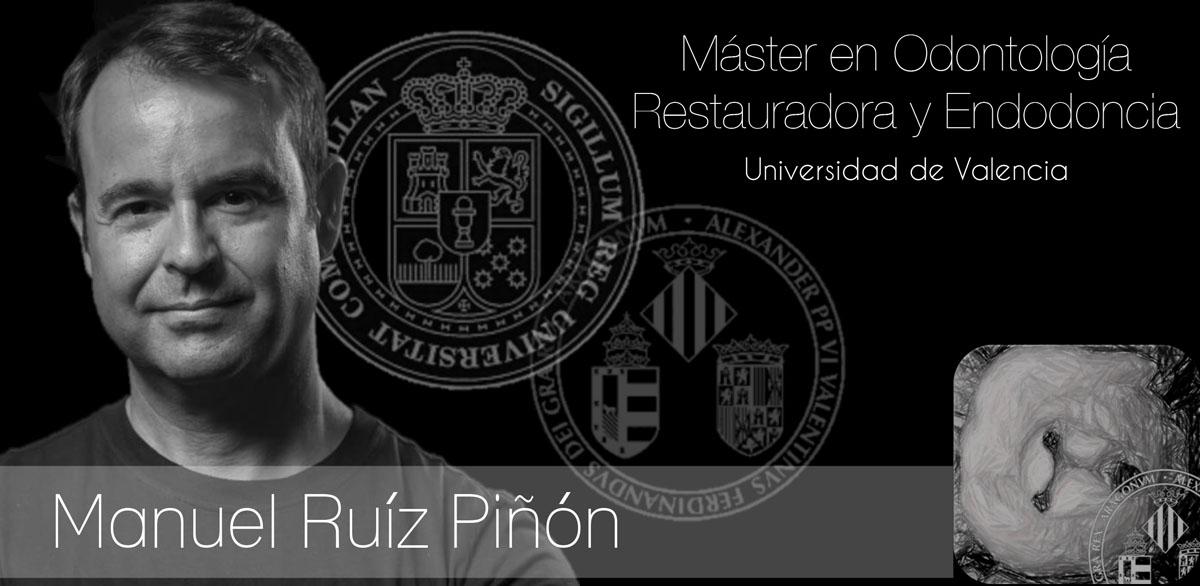 Master en Odontología Restauradora y Endodoncia Universidad de Valencia