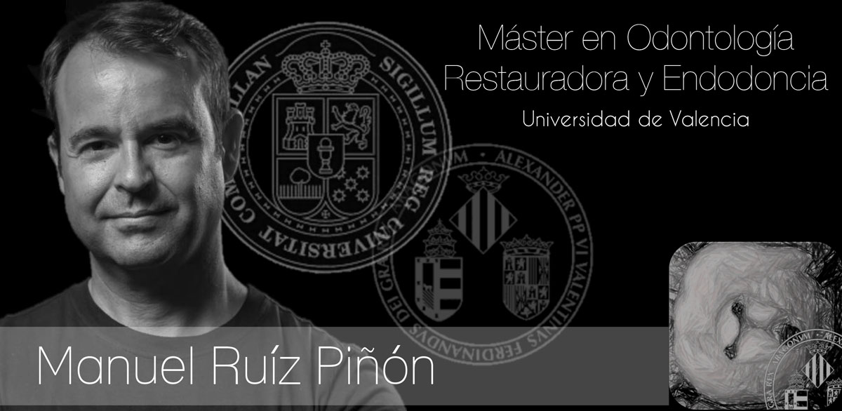 Master en odontolog a restauradora y endodoncia en for Universidad valencia master